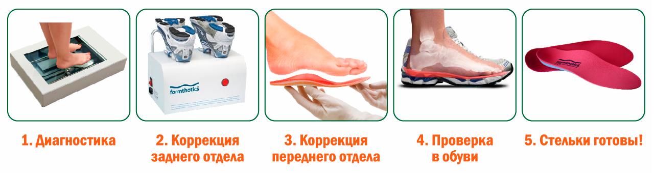 101f2f0d5 Изготовление индивидуальных ортопедических стелек на заказ в СПб ...